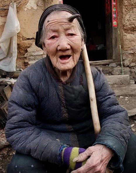 Yaşlı kadının boynuzu çıktı! galerisi resim 1
