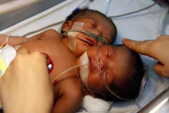 Dünyayı şaşırtan iki başlı bebek galerisi resim 1