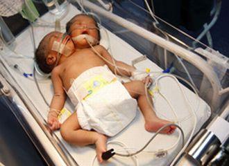 Dünyayı şaşırtan iki başlı bebek