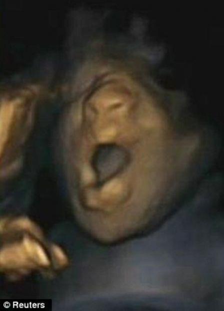 Bebeğin esneme anı galerisi resim 1