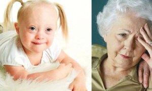'Alzheimer ve Down Sendromu'nun tedavisi için umut ışığı