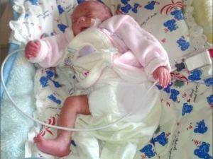 53 günlük bebek vurulan iğne sonucu kangren oldu iddiası!