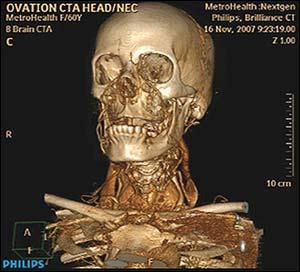 1 dakikada, 3 boyutlu tüm vücut tomografisi