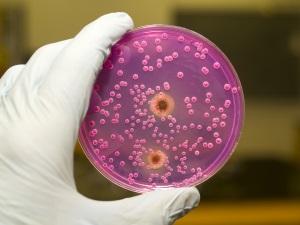Tüm hastalıkların sebebi o olabilir: Candida mantarı