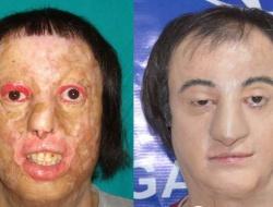 Nakilsiz yüz operasyonu başarıyla sonuçlandı