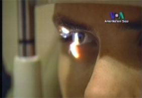 Lazerli göz ameliyatları güvenli mi?