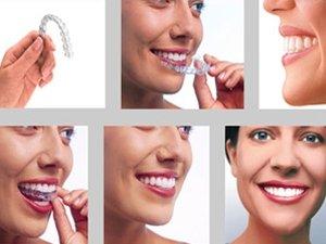 Uzun Süre Emzik Kullanımı, Dişlerin Şeklini Bozuyor