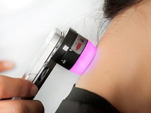 Cep telefonu aracılığıyla cilt kanserine erken teşhis imkanı