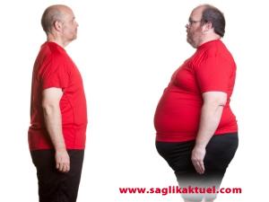 Tüp mide ameliyatıyla obeziteye son!