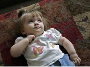 Minik Azra milyonda bir görülen hastalıkla mücadele ediyor