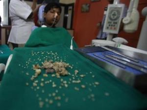 Hindistan'da dişçilik tarihine geçecek operasyon