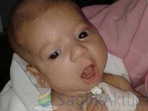 Berk bebek iyileşme sürecine girdi