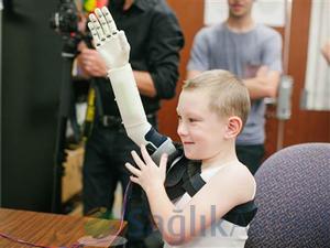 3D yazıcıyla yeni koluna kavuştu