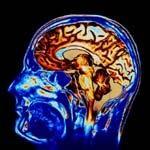 Beyin tümörüne ameliyatsız çözüm