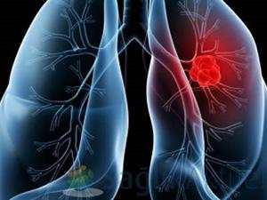 Akciğer kanserinde yüzde 6 düşüş yaşandı