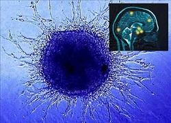 Beyin kanserine sebep olan 2 gen bulundu