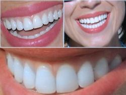 Dişleri çürüten dokuz hata!