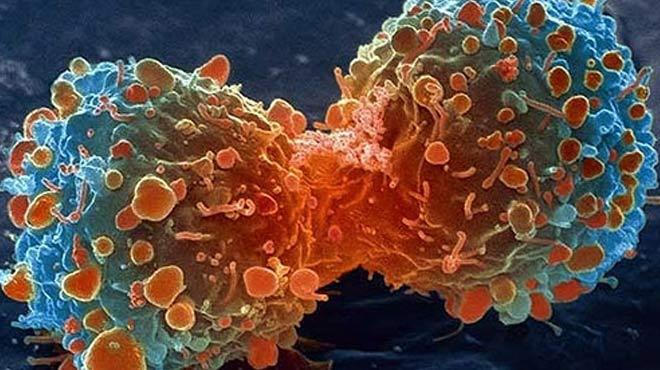 Türk doktor kanser hastalarına umut oldu