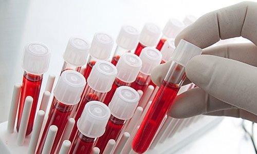0 kan grubuna sahip olan kişiler kanser için daha az riskli