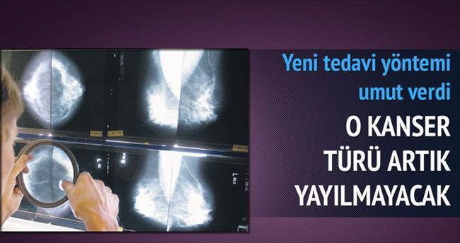 Göğüs kanserinde sıçrama engellendi