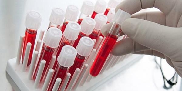 100 hastalığın nedeni zararlı molekülleri tespit eden test