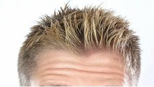 Göğüs kılı ekilince saçı taklit ediyor