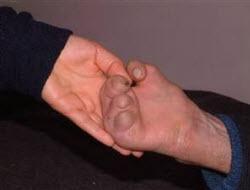 Türkiye'de 4.000 cüzzam hastası var