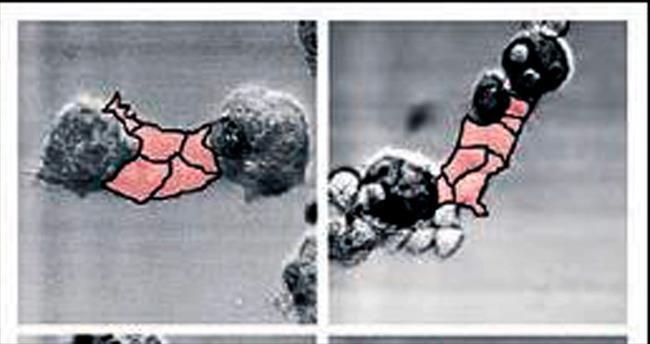 Kalın bağırsak kanseri en sık görülen 5 kanser arasında!