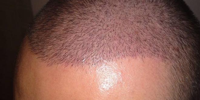 DHI(Direct Hair Implantation) VS Sapphire bıçak ekim