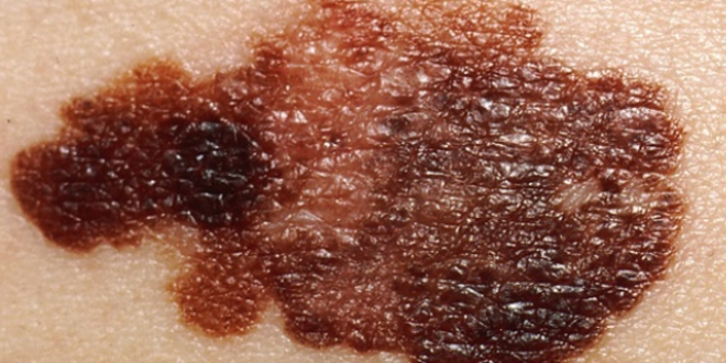 Deri kanseri tespiti için ücretsiz tarama