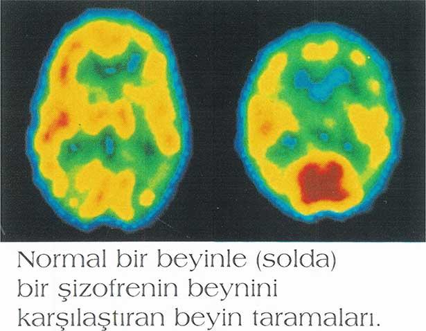Şizofrenide beynin karar mekanizması bozuluyor