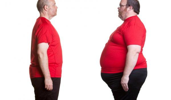 Obezite cerrahisinde başarıyı getiren 5 faktör