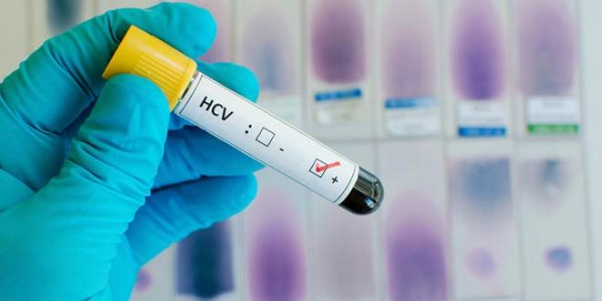 FDA, Hepatit C için ilk ilaç kombinasyonunu onayladı