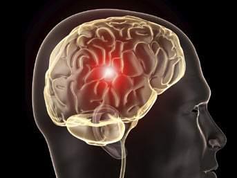Beynindeki kötü huylu tümör