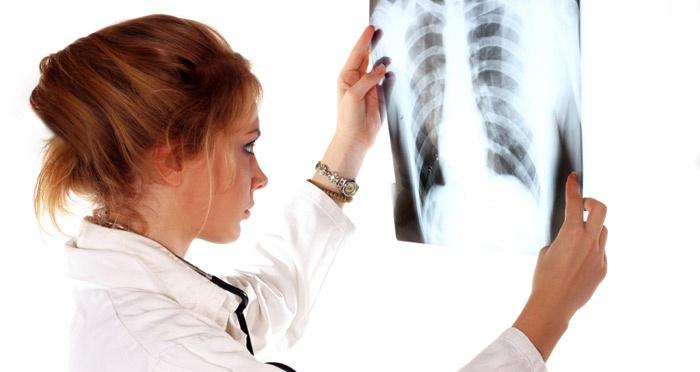 Doktor röntgen sonucunu görünce hastadan davacı oldu