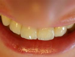 Serbest diş hekimlerine sevkle tedavi imkanı