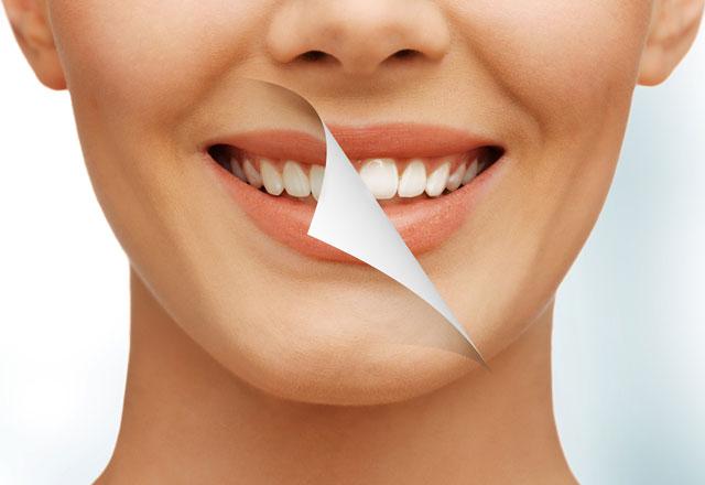 Diş rengi hakkında doğru bilinen 10 yanlış!
