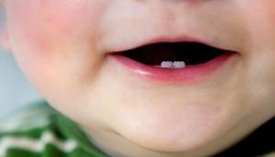Annesinin karnından dişli doğdu!