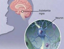 Parkinson'da yeni bulgular