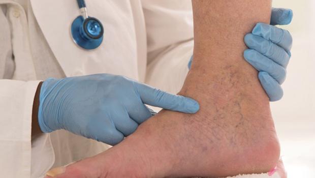 Varis tedavisinde yeni yöntem: Köpük Tedavisi