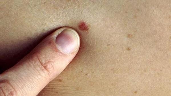 Yılda 250 binden fazla kişiye melanom tanısı konuluyor
