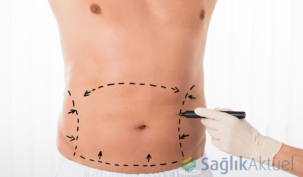 Sıkı vücuda karın germe ameliyatı ile kavuşabilirsiniz