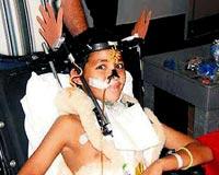 Kazada kopan kafası yerine dikildi!