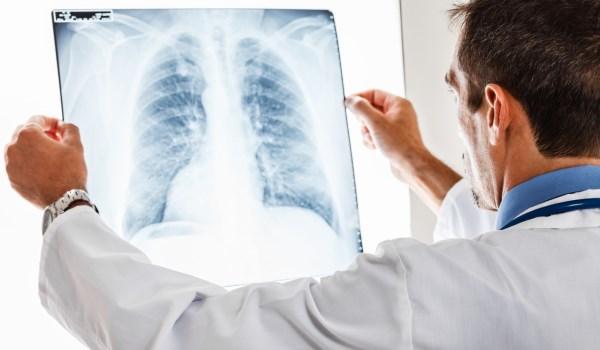 Zatürre, yaşlılar ve kronik hastalıkları olanlar için daha büyük bir tehdit