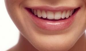 İşte dişleri beyazlatmanın 10 kuralı!