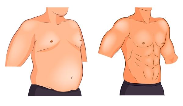 Jinekomasti (erkeklerde meme büyümesi) sebepleri ve tedavisi
