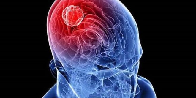 'Beyin tümörlerinde erken teşhis önemli'