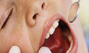 Kalp krizi sinyali ağızda başlıyor