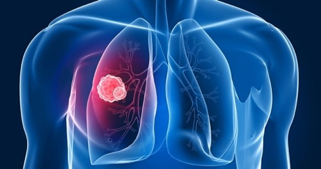 "Akciğer kanserinde ""kombine tedavi"""