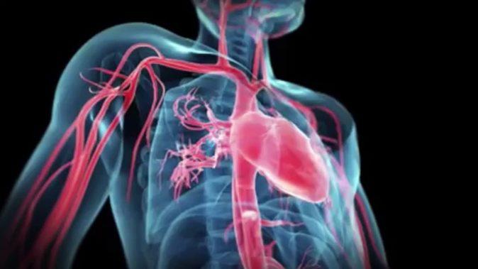 Aort anevrizmasında damar belli bir çapa ulaştığında patlıyor